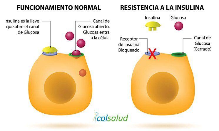 Resistencia a la insulina - La célula no responde a la Insulina