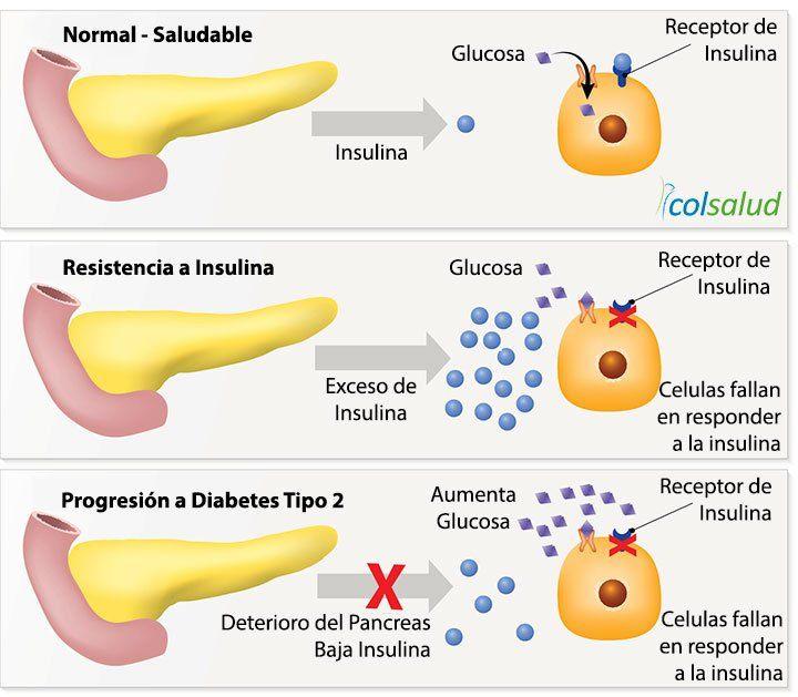 Resistencia a la Insulina - Diabetes 2 - Historia Natural de la Enfermedad