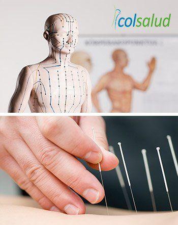 Auriculoterapia para bajar de peso - Diferencias con la acupuntura