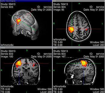 Auriculoterapia - evidencias con resonancia magnética funcional