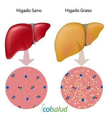 El Azúcar Causa Inflamación en el Cuerpo - Hígado Graso